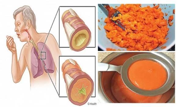 Házi köhögés elleni szirup, ami pár óra alatt eltávolítja a nyákot a tüdőből és megszünteti a gyulladást!