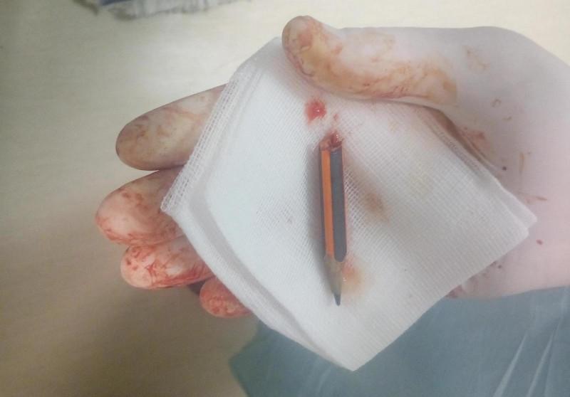 Ez az 5 centis ceruza volt Barbara combjában! Két kórház orvosainak fel sem tűnt! Figyeld, ezután mit mondtak!